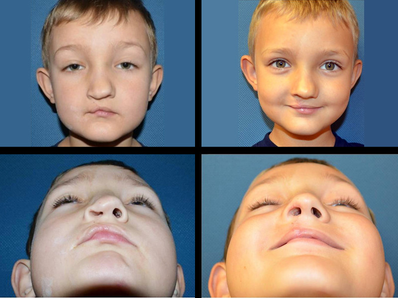 essays on cleft lip Science term papers (paper 5633) on cleft lip and palate: cleft lip and palate are facial birth defects a cleft lip affects the upper lip, ranging from a notch to a complete fissure extending int term paper 5633.
