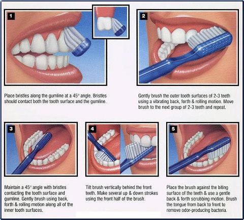 What Is The Proper Way To Brush Your Teeth Tigard Tenderc