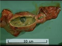 function of gallbladder in digestion (liver purge) functio… | flickr, Cephalic Vein