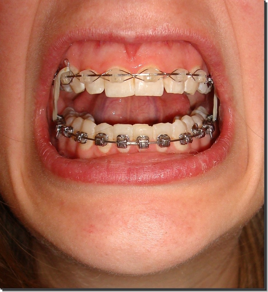 How Much Do Braces Cost Step 3 Charitable Organizations