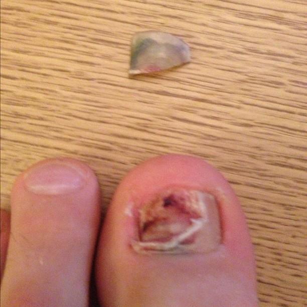 my toenail fell off this morning ihopeyouvehadyourbreakfa flickr