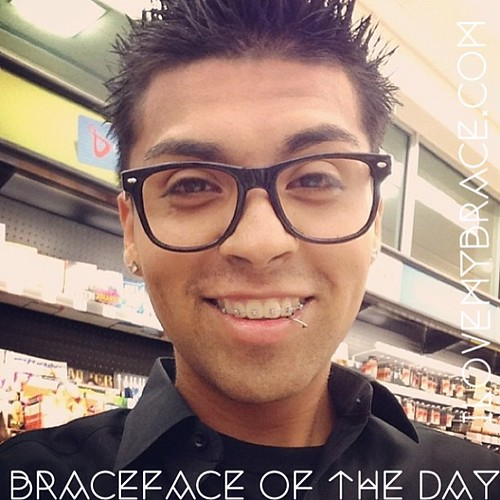 The Cute Dhatchinkyeyedchico Is Our Brace Face Of The Day