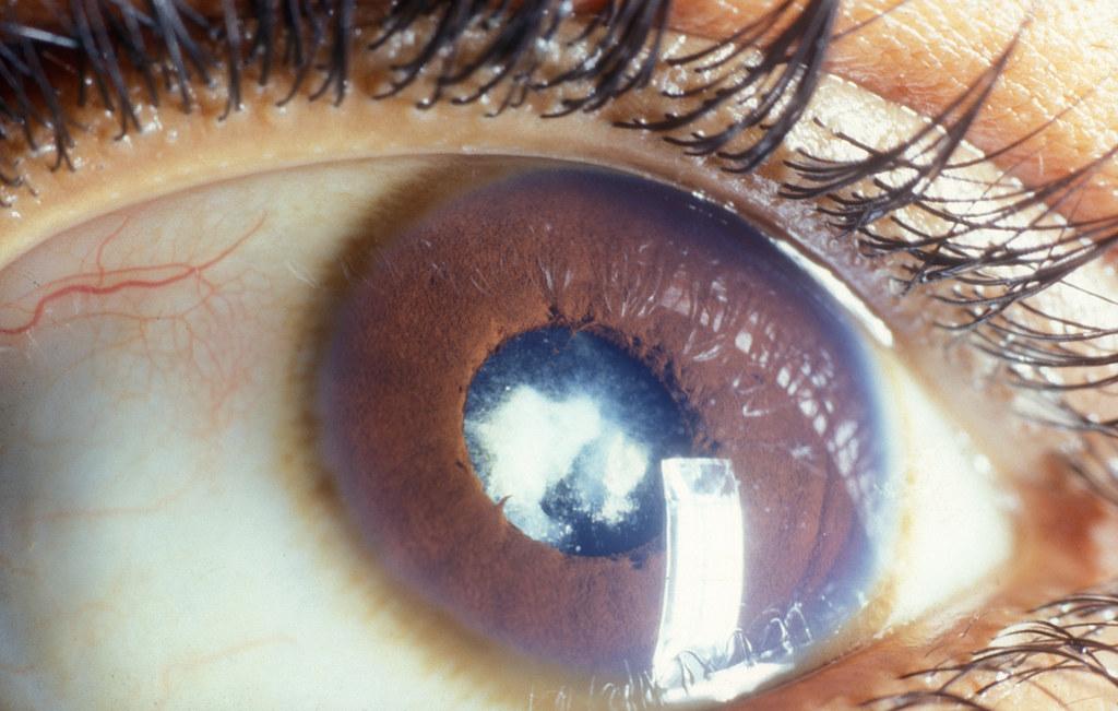 Post cataract surgery. | Lens epithelium has proliferated ...