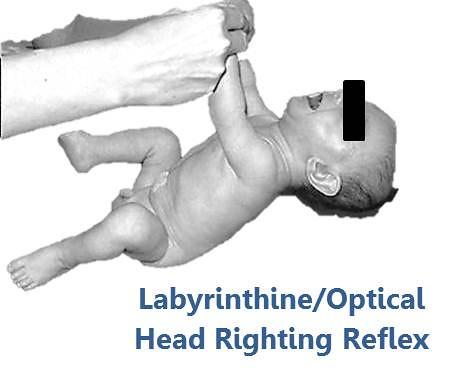 Body Righting Reflex Head Righting Reflex | by