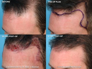 Rolston, Kevin  Before, The Plan, Healing, Hair Growth | by Dr_Alan_Bauman