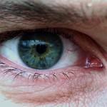 stuart's eye