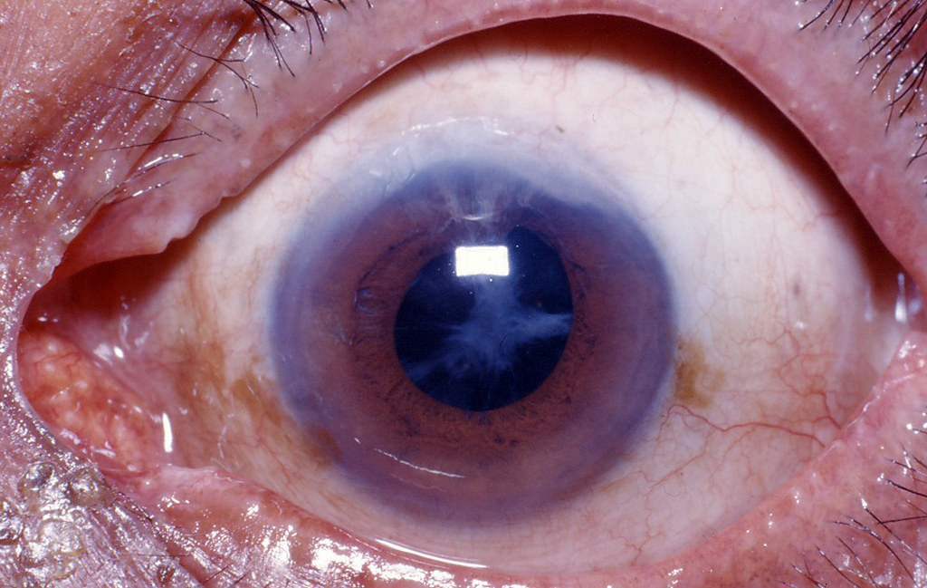thesis on posterior capsular opacification Posterior capsular opacification (pco) is the most frequent complication of cataract surgery advances in surgical techniques, intraocular lens materials, and d.