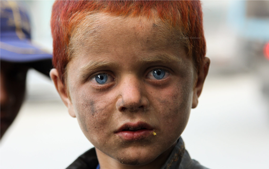 Blue Eyes A Young Kid With Blue Eyes And Red Hairs