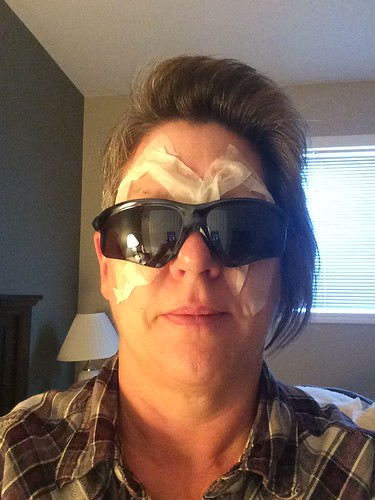 Post LASIK eye surgery.