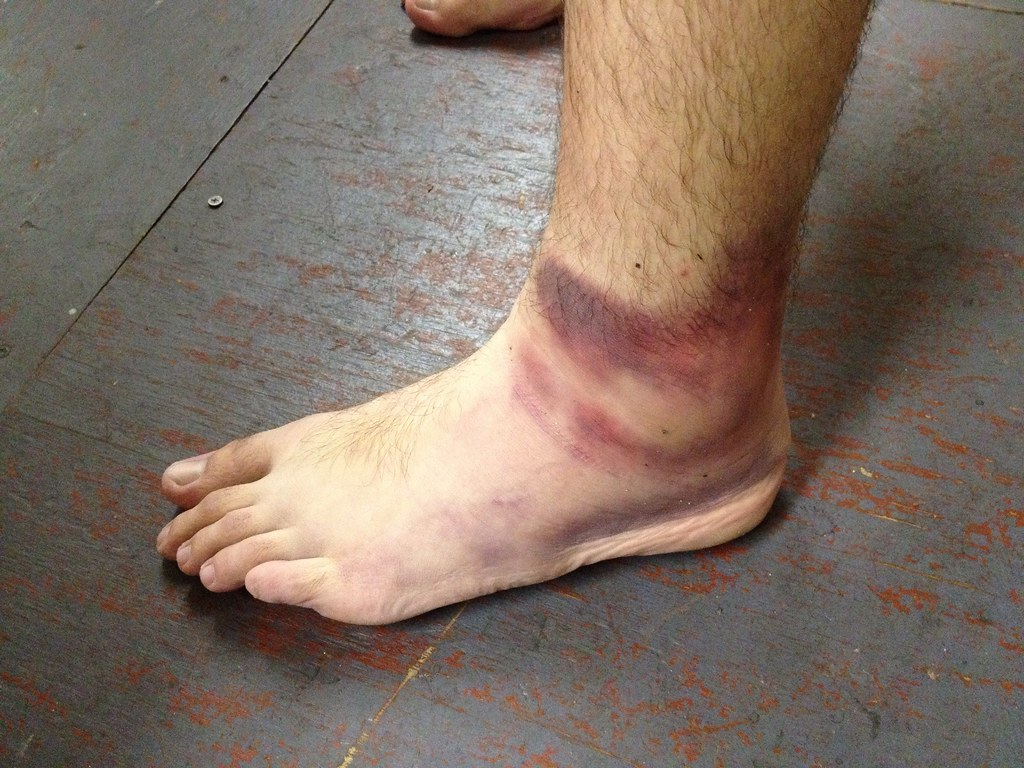 Victory ankle roll tendon tear   We just won the DIYBA ...