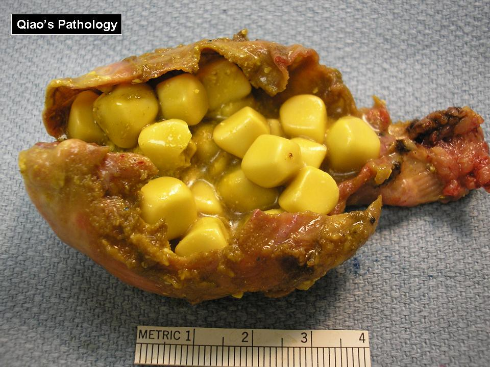 how to say gallstones in spanish