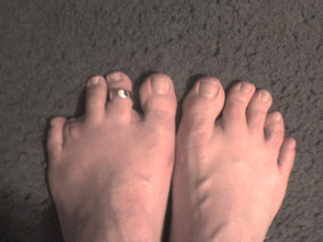 missing toe after four weeks   Frank Tyree   Flickr