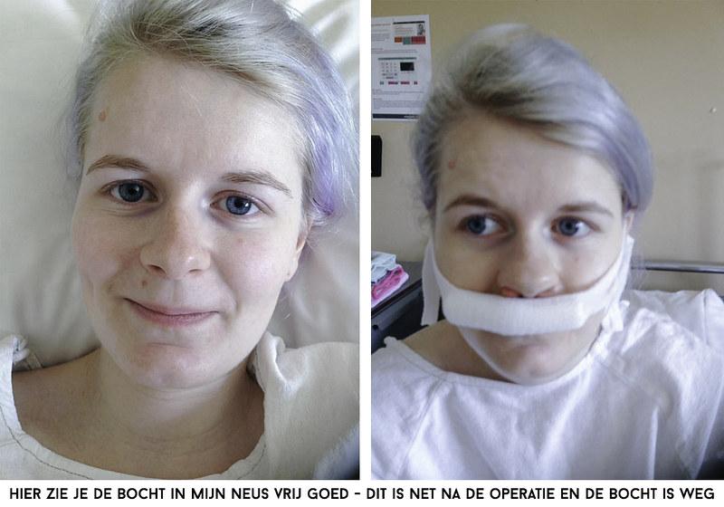 operatie aan neus