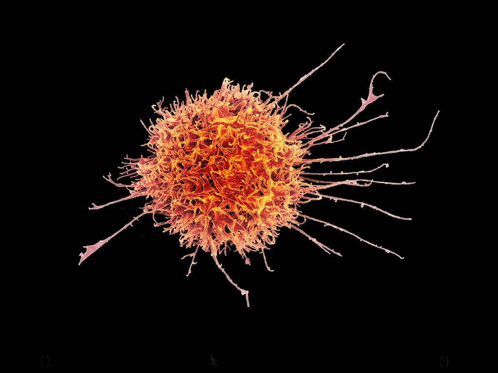 Human Natural Killer Cell | Colorized scanning electron ...
