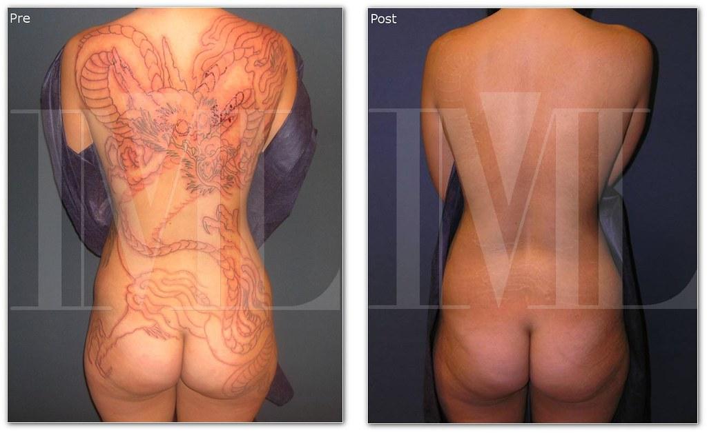 Eliminar Tatuaje Con Láser Los Tatuajes De Tinta Negra Y R Flickr