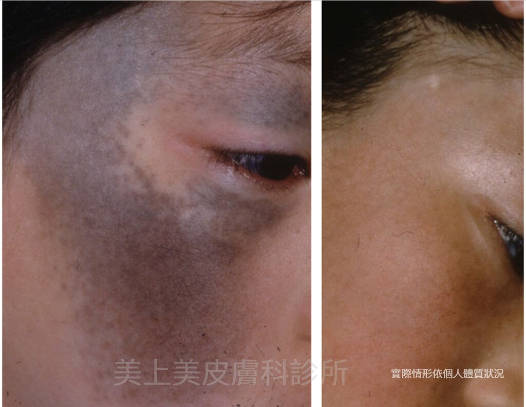 最新的美白除斑雷射,是美上美皮膚科的皮秒雷射,市面上沒有一台除斑雷射、美白雷射有皮秒雷射的治療效果,針對美白除斑的最佳首選推薦,皮秒雷射是你唯一選擇。