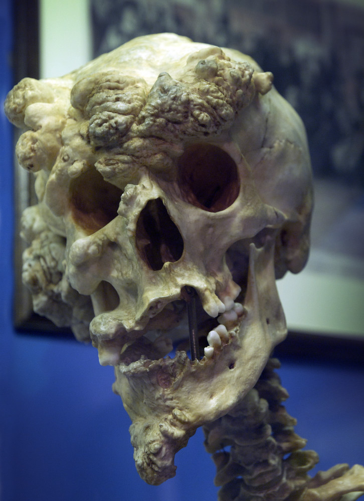 Skull of Joseph Merrick. | Dominic Dibbs | Flickr