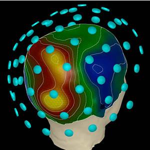 Magnetoencephalography Meg Magnetoencephalography Meg