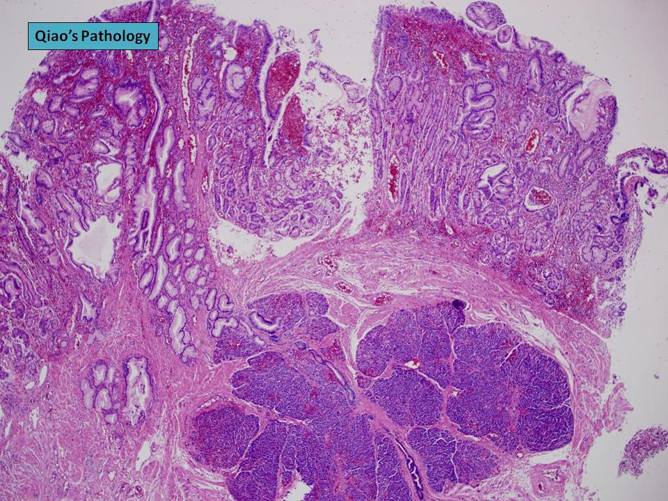 Qiao U0026 39 S Pathology  Adult Small Bowel Intussusception By A L