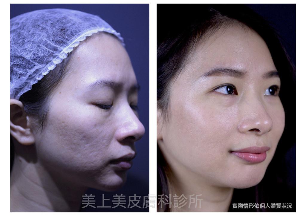 痘疤、凹洞、疤痕令人困擾,痘疤治療是一件困難的事,皮秒雷射治療痘疤是最新最佳的痘疤治療方法,痘疤治療診所推薦美上美皮膚科,治療痘疤凹洞更是美上美的專業