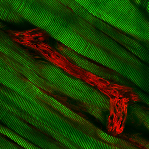 Mouse Muscle Tissue Multiphoton Imaging | by ZEISS Microscopy