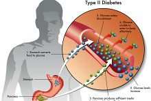Can you break the cycle of type 2 diabetes?