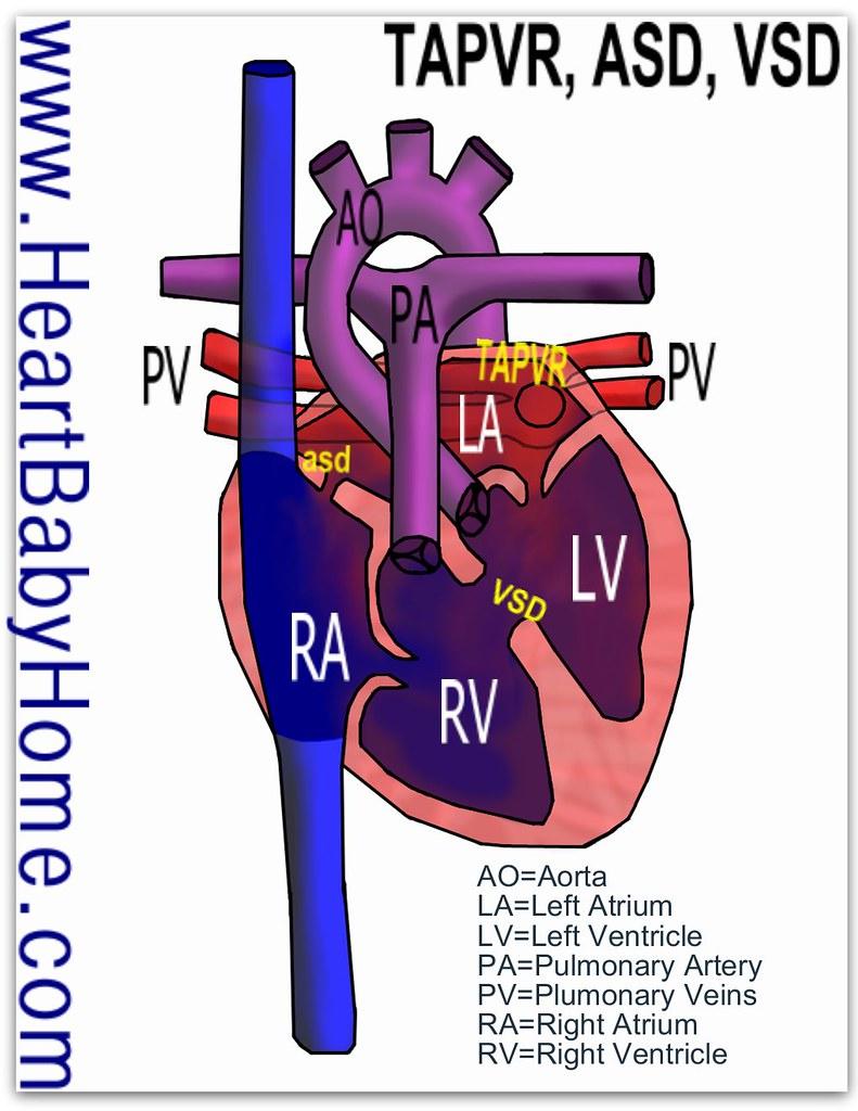 Боли в сердце при ВСД (вегето-сосудистой дистонии ...