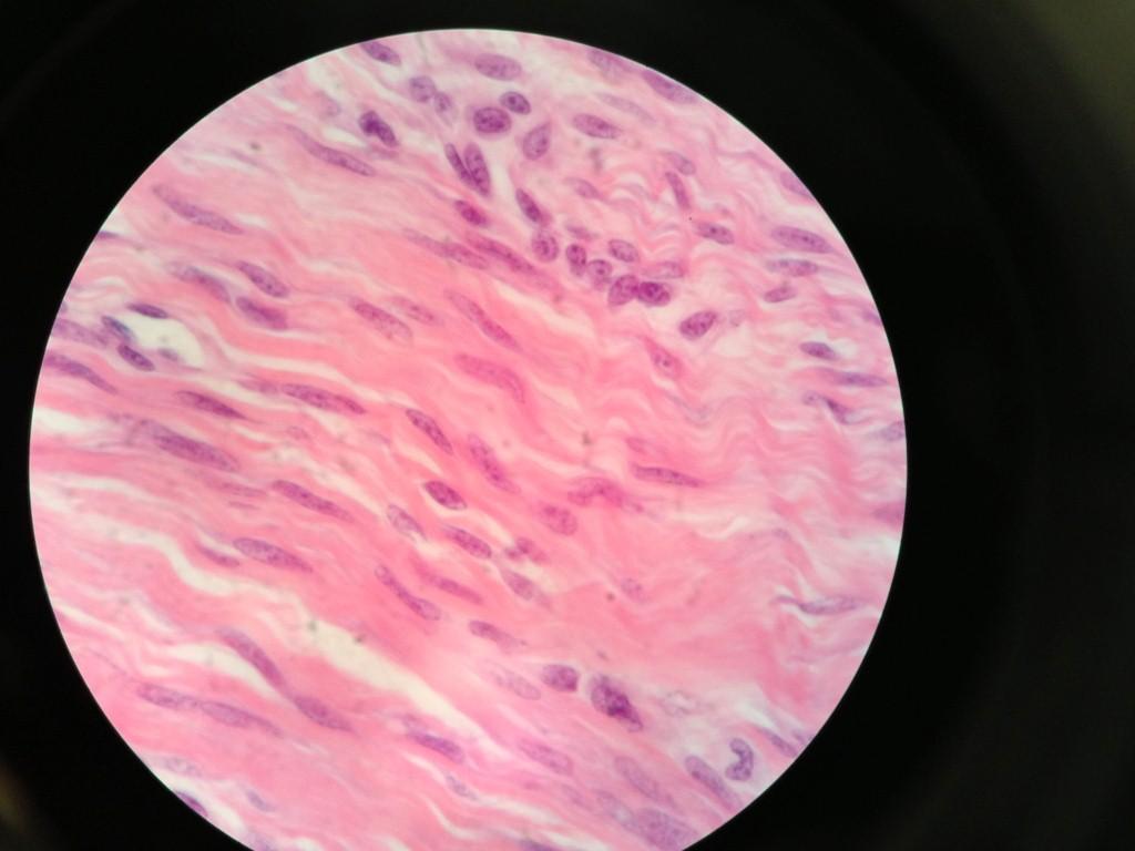 dense irregular connective tissue 2 medium changgp