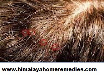 Home Remedies To Remove Lice From Hair Permanently