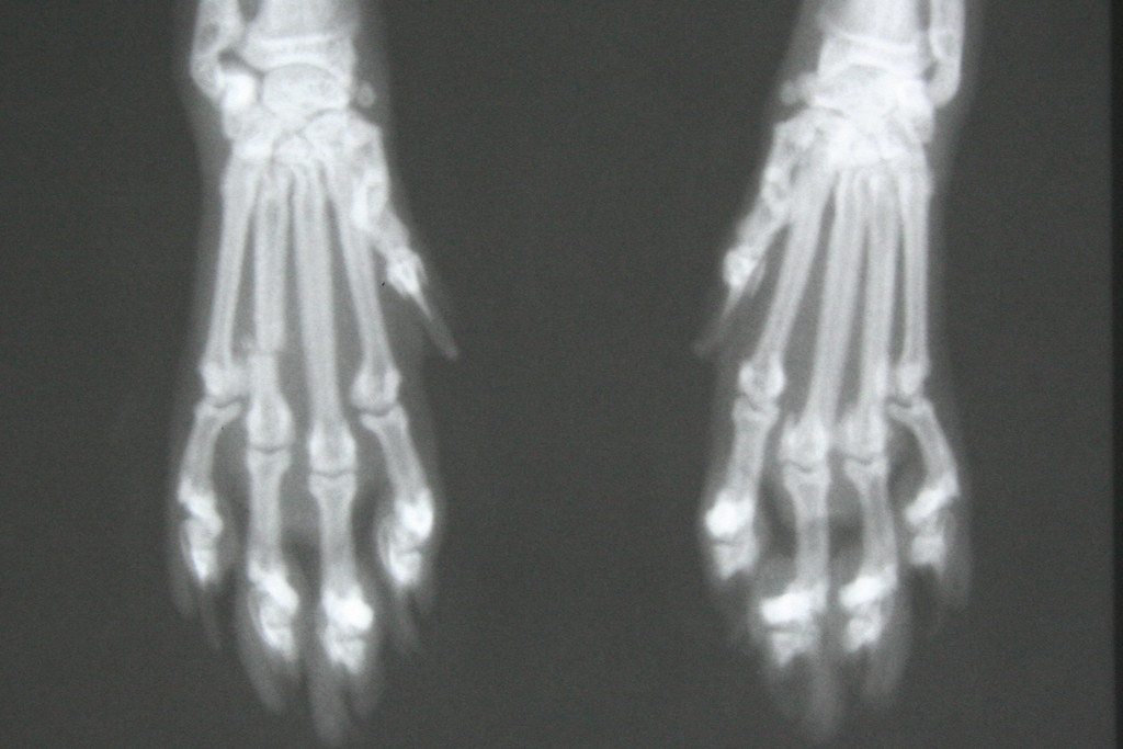 Fractured Metacarpal Cat Sustained A Transverse Fracture O Flickr