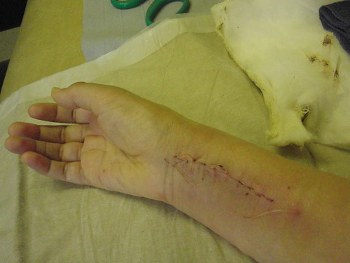 Wrist - stitches removed | by :: Wendy ::