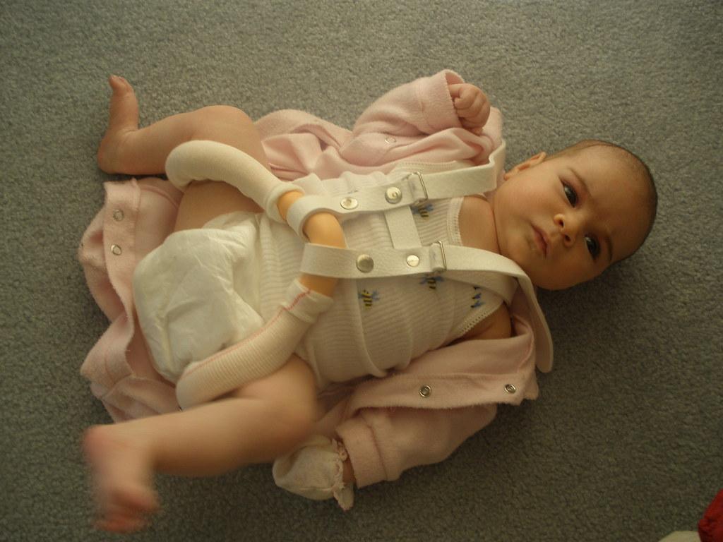 Baby in a Correctio brace   Bl...