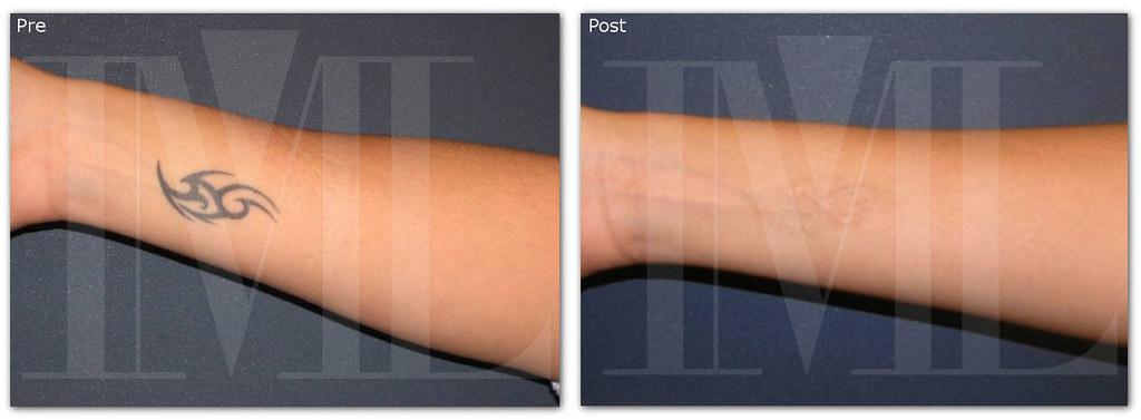 Tatuaje Negro Eliminado Con Láser Eliminar Tatuajes Con Lá Flickr