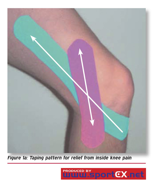 Taping Pattern For Relief From Inside Knee Pain Flickr Photo Sharing