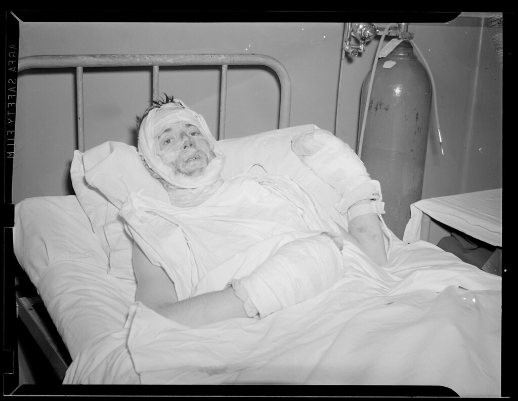 Burn Victim From The Cocoanut Grove In Hospital Bed