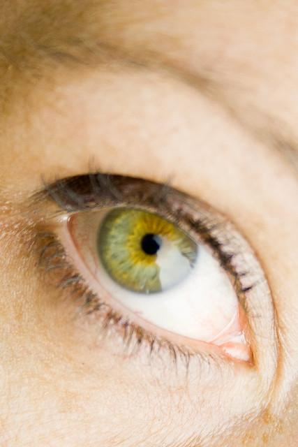 Central Heterochromia-...