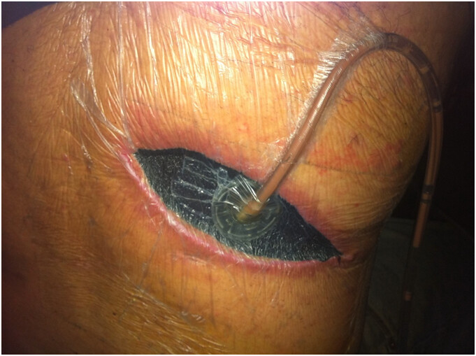 surgical wound abcess with activac wound therapy day ten