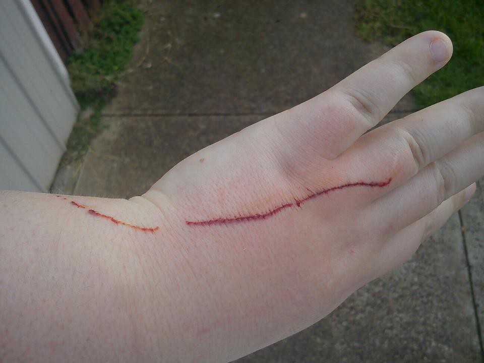 Indoor Cat Scratch Tetanus