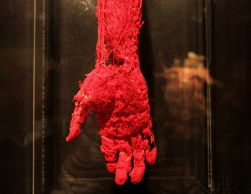 Blood Vessel Configuration of the Hand | Body World Vital ...