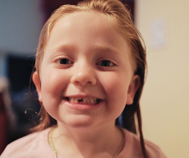 #100daysofsummer to losing her first tooth. *sniff* My first baby is growing up!