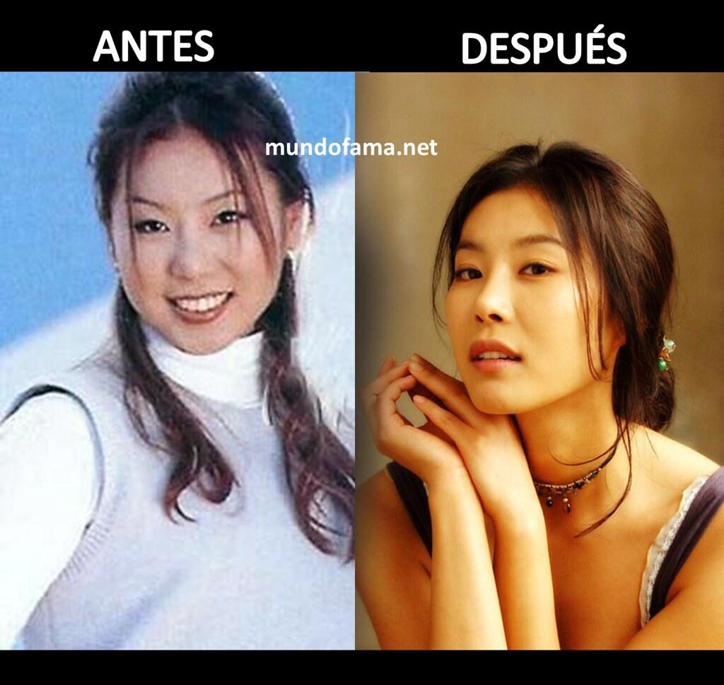 Actrices Coreanas actrices coreanas operadas antes y despues de adelgazar