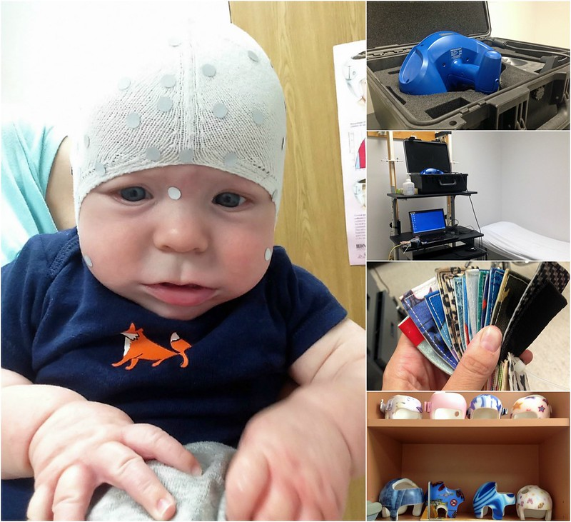 Cranial Helmet Fitting