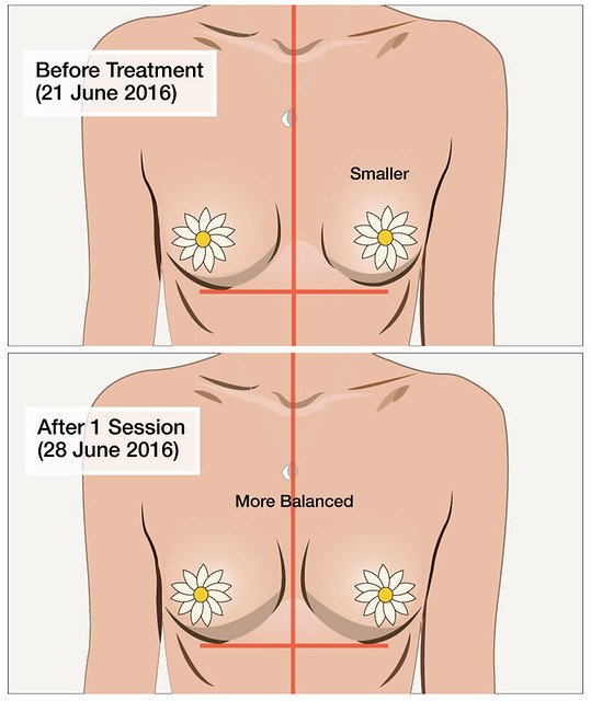 Before After Slimfit Review