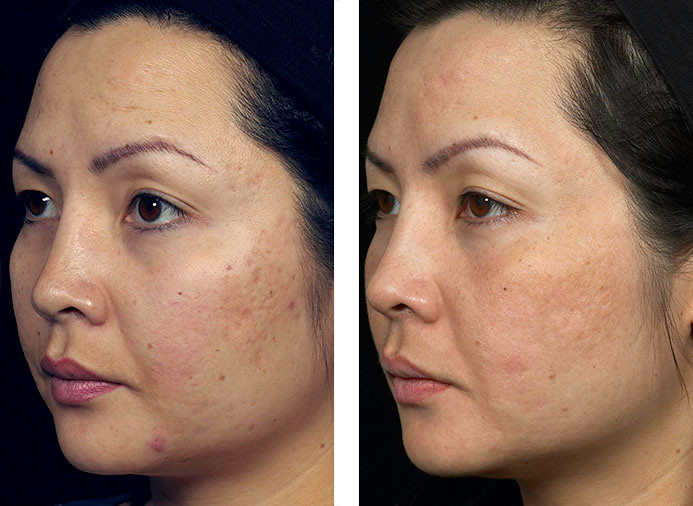 Fraxel Skin Resurfacing Before After 5 Laser Treatment