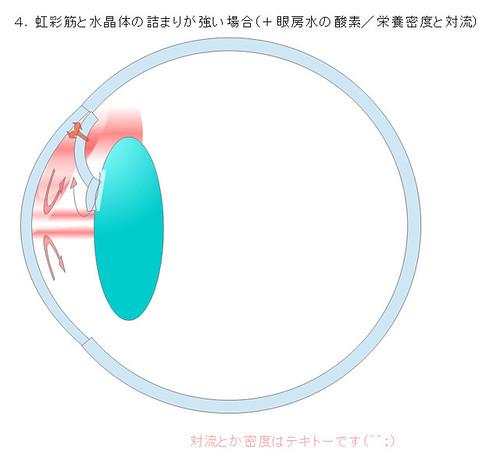 4.虹彩筋と水晶体の詰まりが強い場合(+眼房水の酸素/栄養密度と対流)