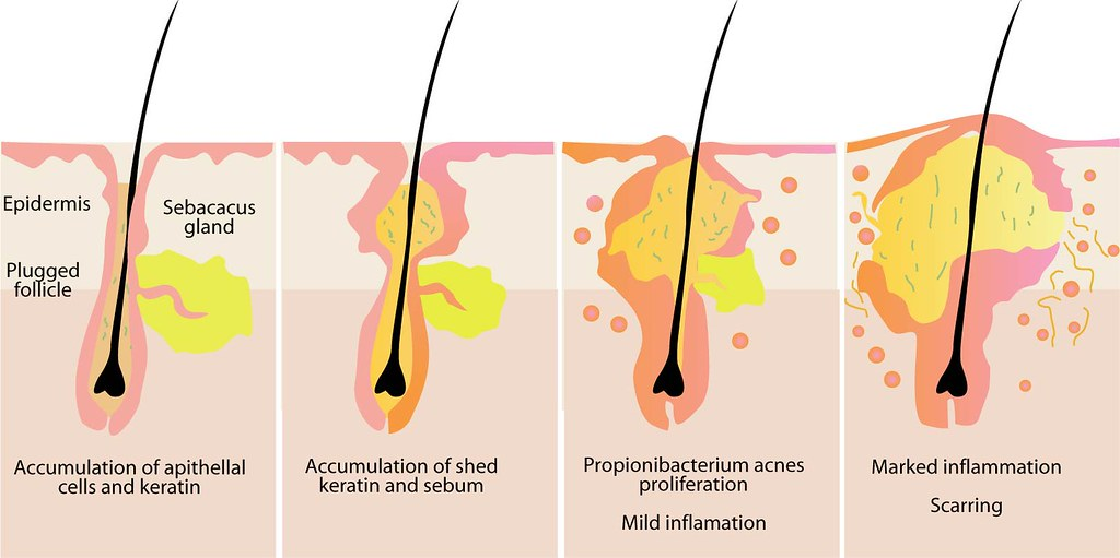 cystic-back-acne-pict-cystic-acne-diagram-medical-anatomy-… | Flickr
