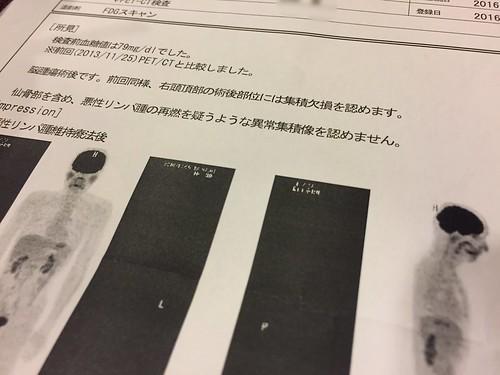 PET-CT検査の結果