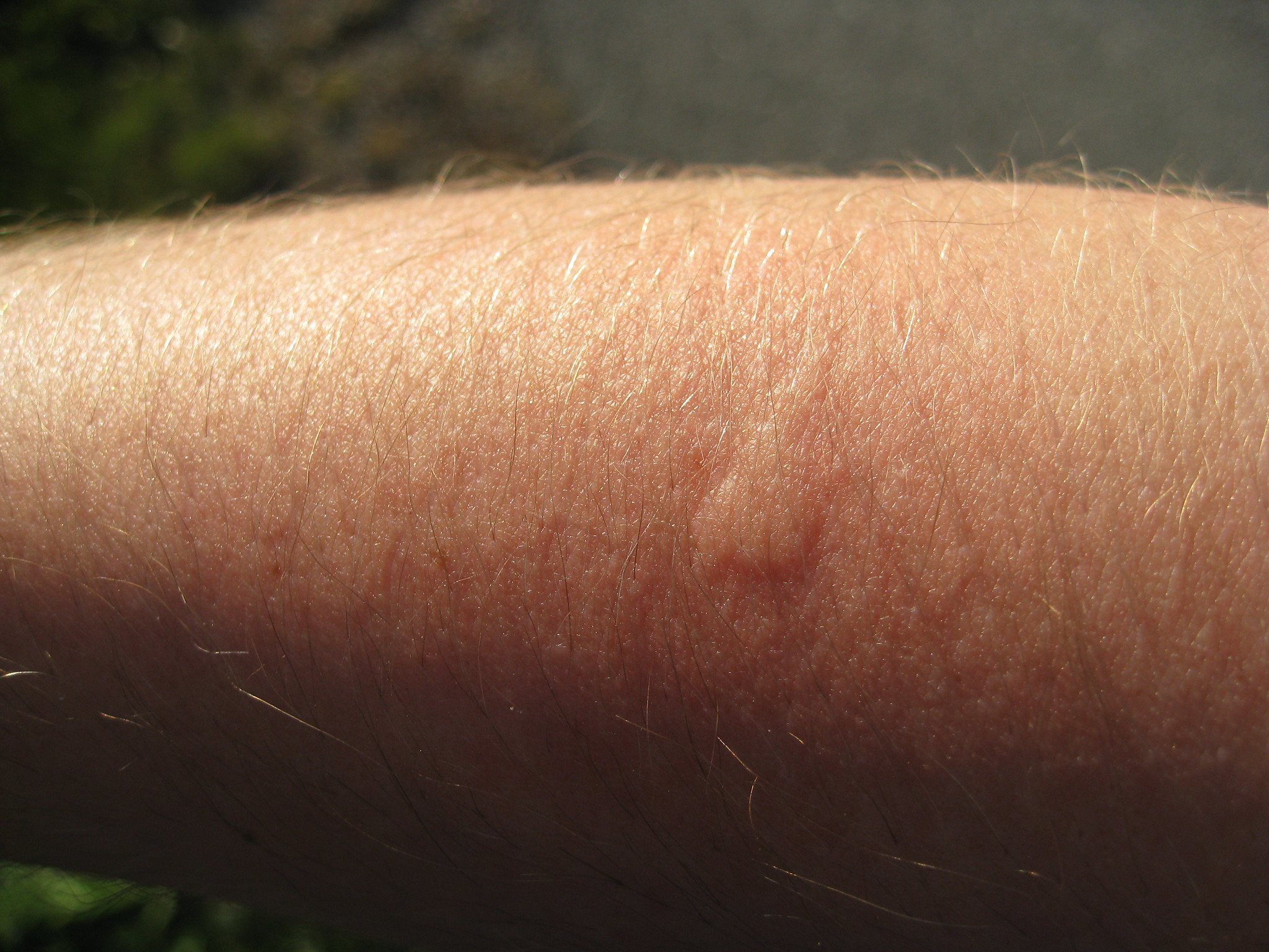 First mosquito bite 2010, 15 minutes later