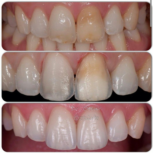 cement 2 porcelain minprep veneers investment technique with feldspathic ceramic vita vm13 cement