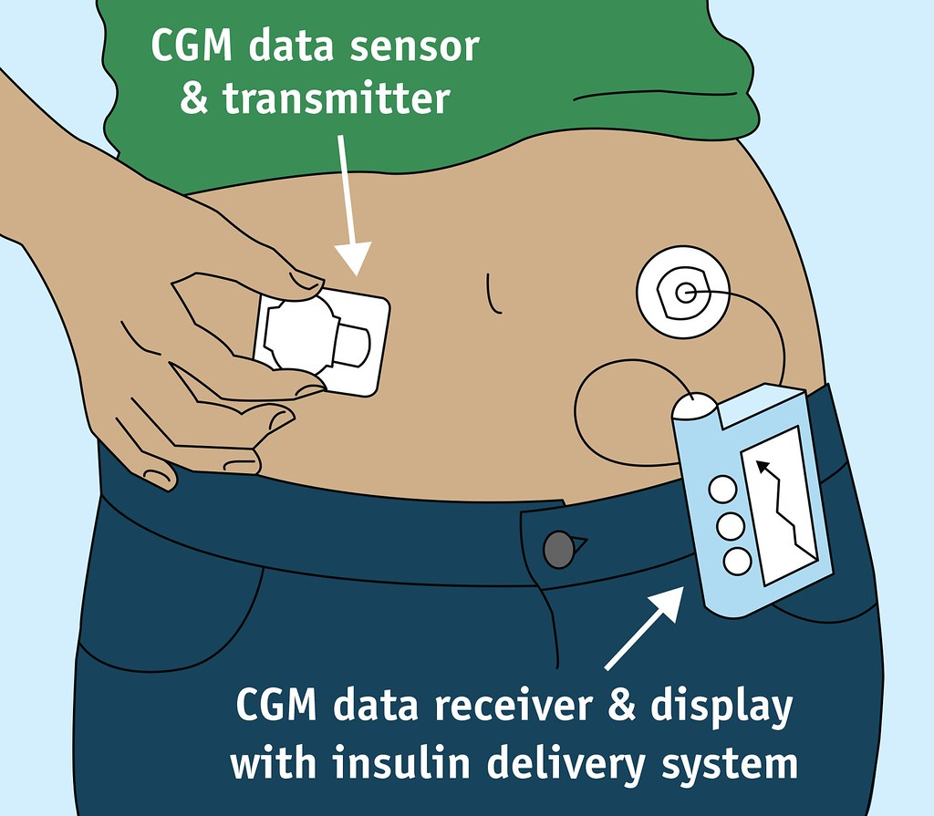 Continuous Glucose Monitor There Are Many Options